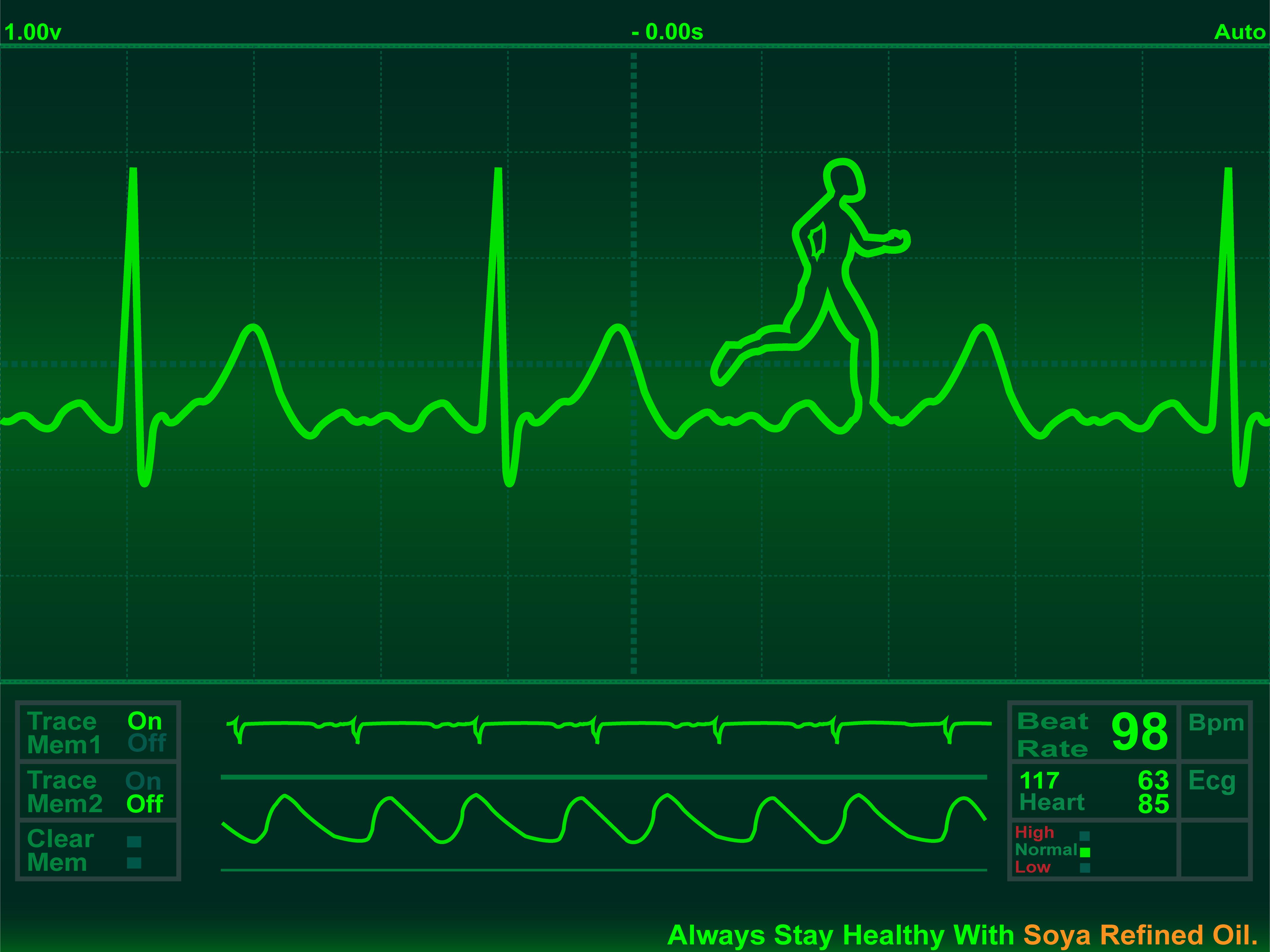 hearts heart beat ecg 3lJN